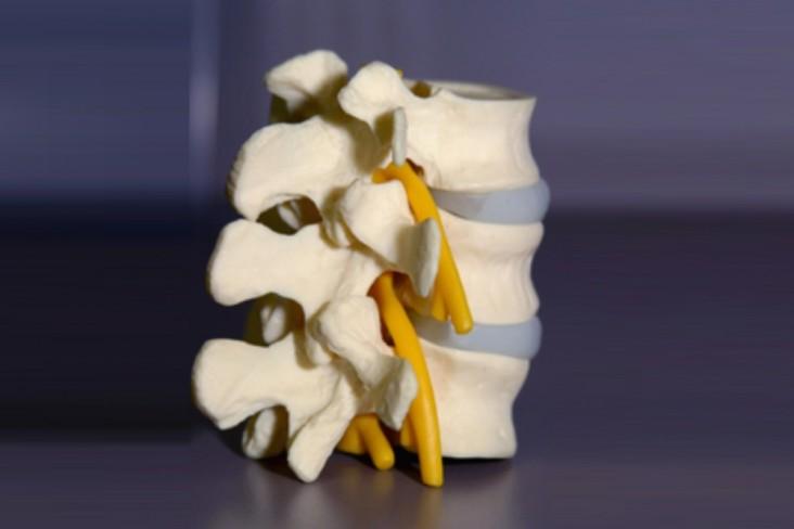 קרן בושי פיזיותרפיה בשפלה במכון או אצלך בבית